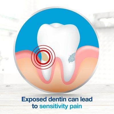 Sensodyne Extra Whitening Sensitivity Toothpaste, Extra Whitening Sensitivity Toothpaste